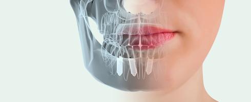 Como-es-el-proceso-para-colocar-unos-implantes-dentales.jpg