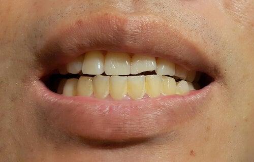 porque-salen-manchas-en-dientes-1.jpg