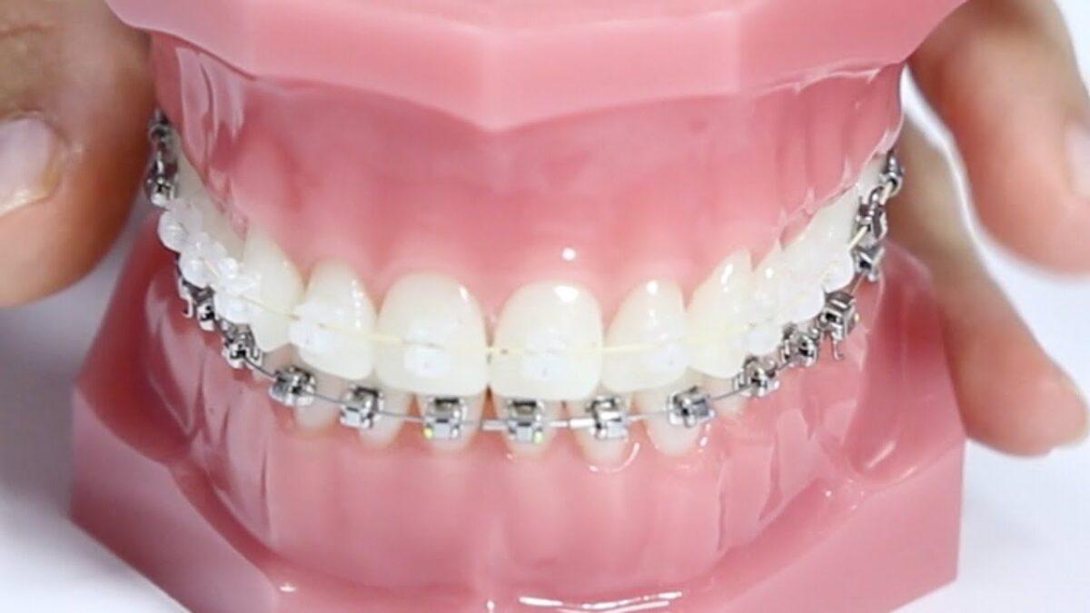 que-es-una-ortodoncia-1200x675.jpg